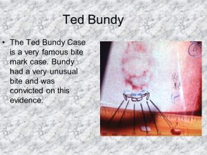 Ted+Bundy+The+Ted+Bundy+Case+is+a+very+famous+bite+mark+case..jpg